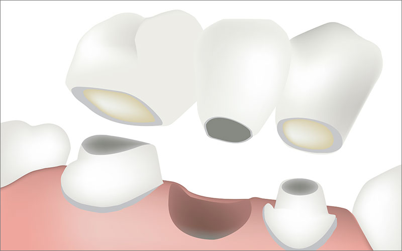 Dental Crowns & Dental Bridges